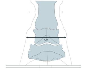 Vue de face : largeur du bourrelet coronal